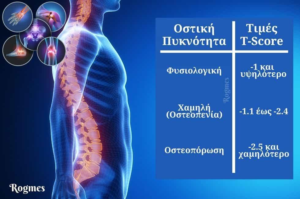 Πίνακας τιμών T-score για οστά