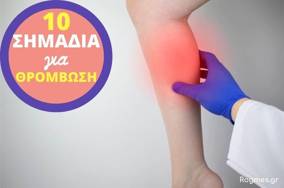 10 Προειδοποιητικά Σημάδια Για Θρόμβωση, Πρόληψη & Ομάδα Αίματος